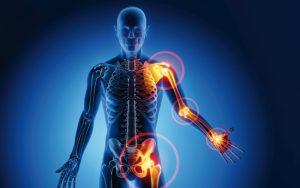 Körperansicht mit nozizeptiven Schmerzen